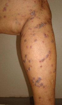 lichen planus on legs