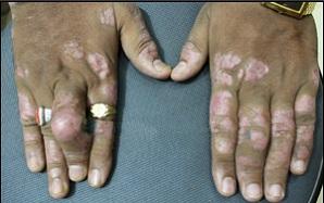 Photo of psoriatic arthritis