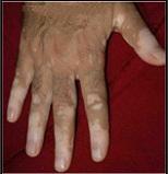 Vitiligo on Fingers