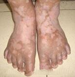 Vitiligo on Feet