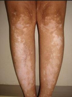 Vitiligo spots on legs